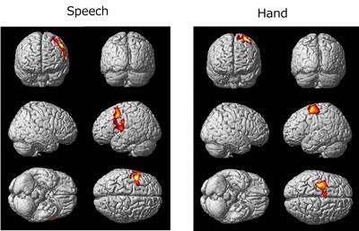 Nobel_brain_kim3.jpg