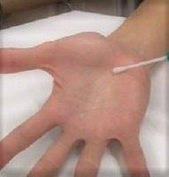 手 の 洗い すぎ